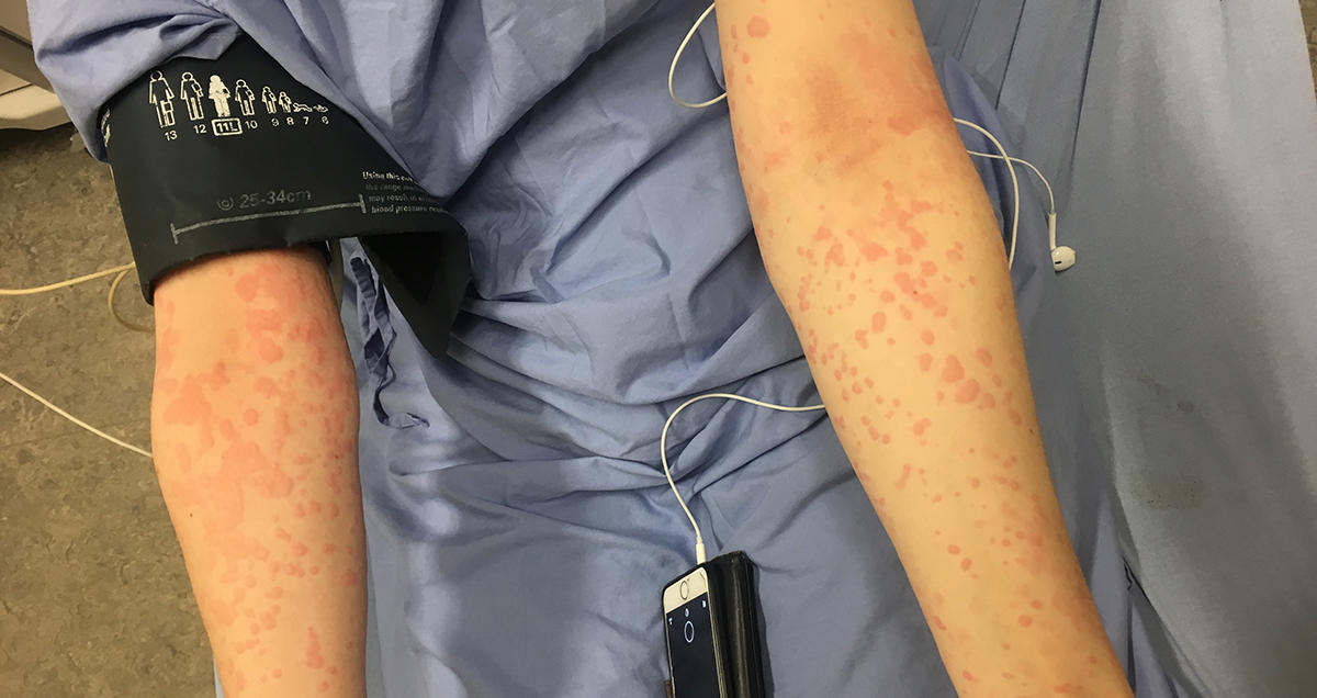 efa36acdf35 This Woman Has Life-Threatening Allergic Reactions to the Cold Temperatures