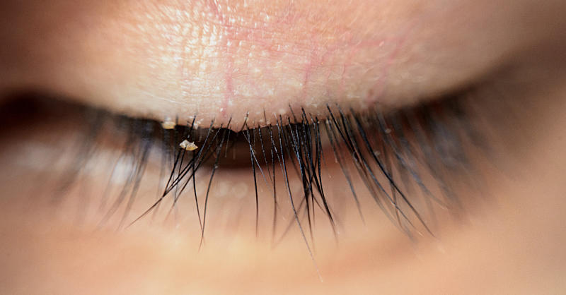 This Woman Found 100 Mites In Her Eyes After Not Washing Her Pillow