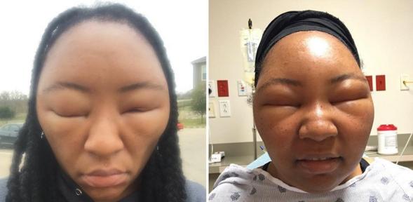 Hair Dye Allergic Reaction Henna Hair Dye Risks Shape