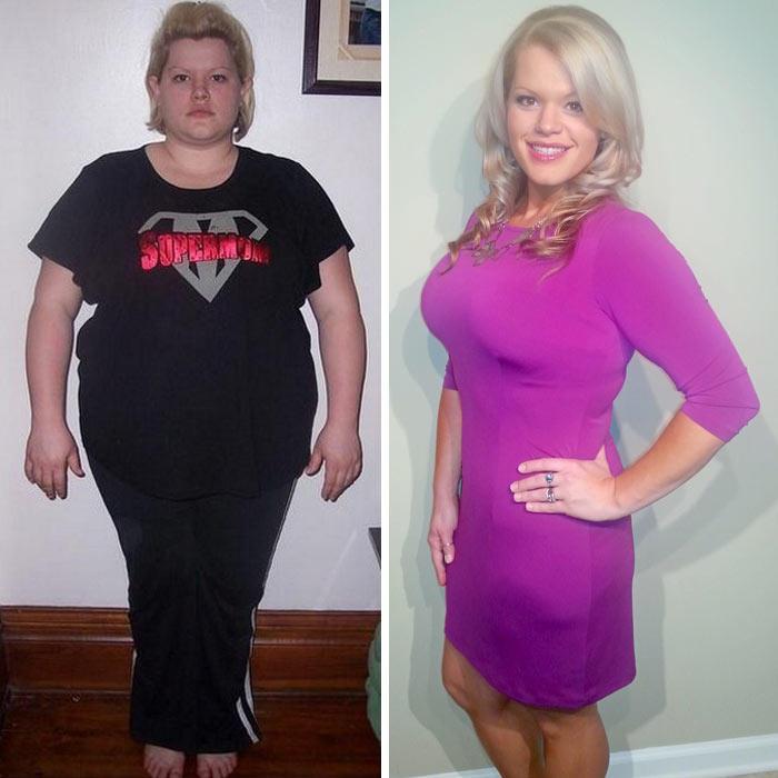 ashley delp weight loss surgery