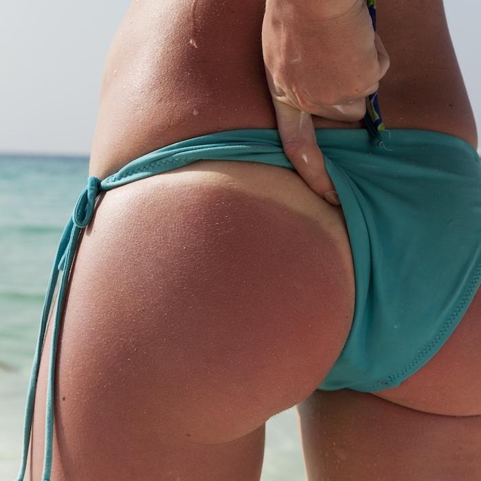 Sunburn Relief Tips to Heal Damaged Skin Fast