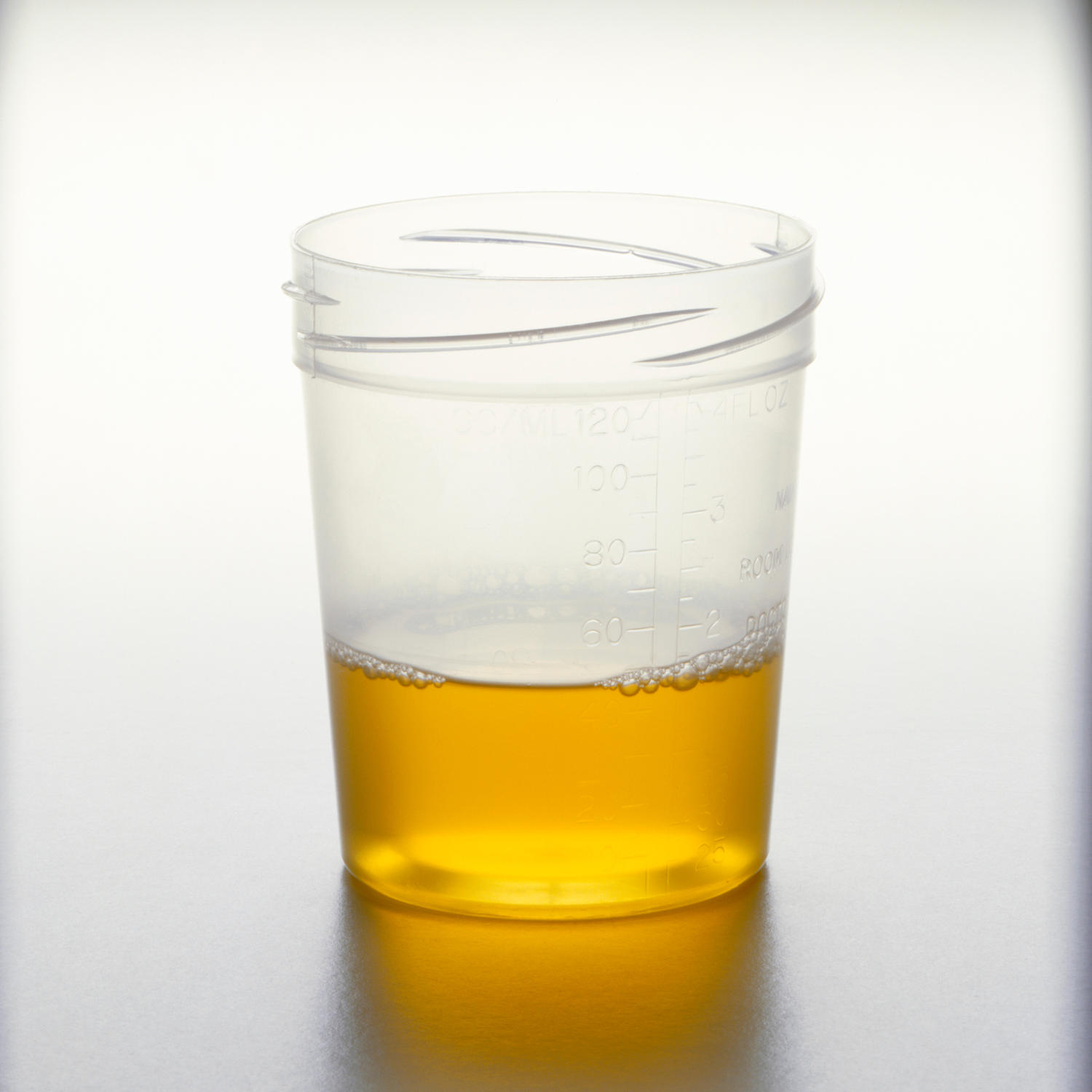 Obesity risk can be detected in your urine says new study for Cocktail urine