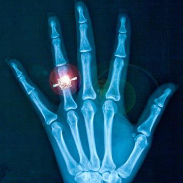 Wedding ring finger loss at work