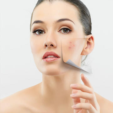 How Get Rid Of Stubborn Acne For Good